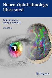 Neuro-OphthalmologyIllustrated