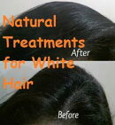 Natural Treatments for White Hair