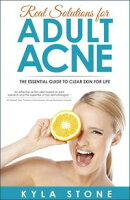 Real Solutions for Adult Acne