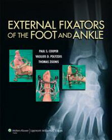External Fixators of the Foot and Ankle【電子書籍】[ Paul Cooper ]