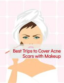 Best Trips to Cover Acne Scars with Makeup