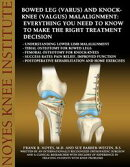Bowed Leg (Varus) and Knock-Knee (Valgus) Malalignment: Everything You Need to Know to Make the Right Treatm…
