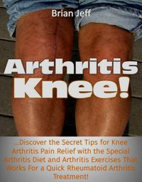 Arthritis Knee! …Discover the Secret Tips for Knee Arthritis Pain Relief with the Special Arthritis Diet and Arthritis Exercises That Works For a Quick Rheumatoid Arthritis Treatment!【電子書籍】[ Brian Jeff ]