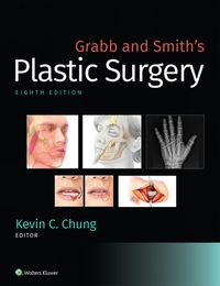 Grabb and Smith's Plastic Surgery