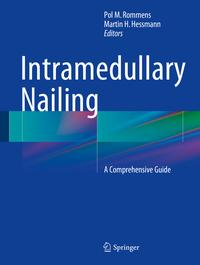 Intramedullary NailingA Comprehensive Guide【電子書籍】