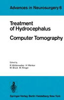 Treatment of Hydrocephalus Computer Tomography