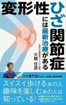 変形性ひざ関節症には最新治療がある 【2019年版】