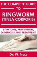 The Complete Guide to Ringworm (Tinea Corporis)
