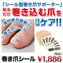 Ingrown nail seal 1