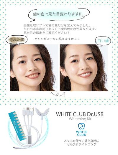 【4月中旬発送予定】USBホワイトニングLED医療機器