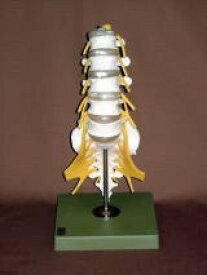 【送料無料】【無料健康相談 対象製品】ソムソ社 腰椎模型(ヘルニア付、仙骨部一部脱着可) qs66_1sc
