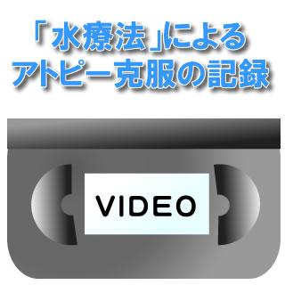 【DVD】【ビデオ】「水療法」によるアトピー克服の記録