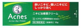 【第2類医薬品】ロート製薬 メンソレータム アクネス ニキビ治療薬 (18g) ツルハドラッグ